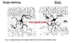 microglia1