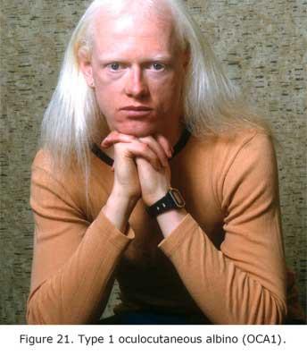 AlbinoFig21